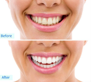 Cosmetic Dentistry | City Smiles | Old Irving Park Dentist